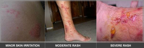 mild poison ivy rashes. oil) Poison Ivy rashes can